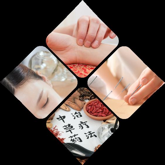 acupuncture lausanne